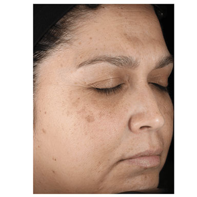 Age Spots - Before treatment