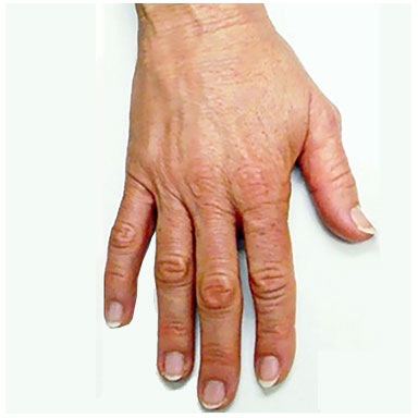 Ageing Hands - after treatment