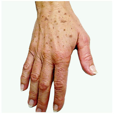 Ageing Hands - Before treatment