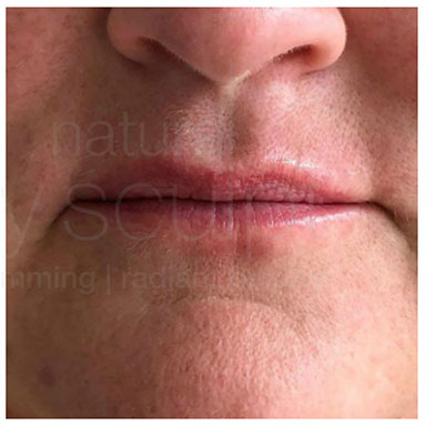 Lip Pumping - after treatment