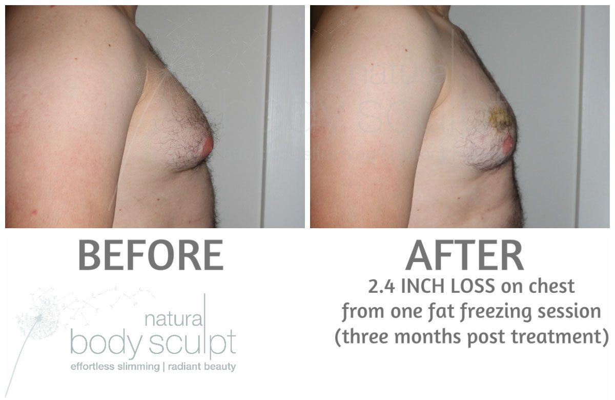 Fat Freezing after 30 weeks