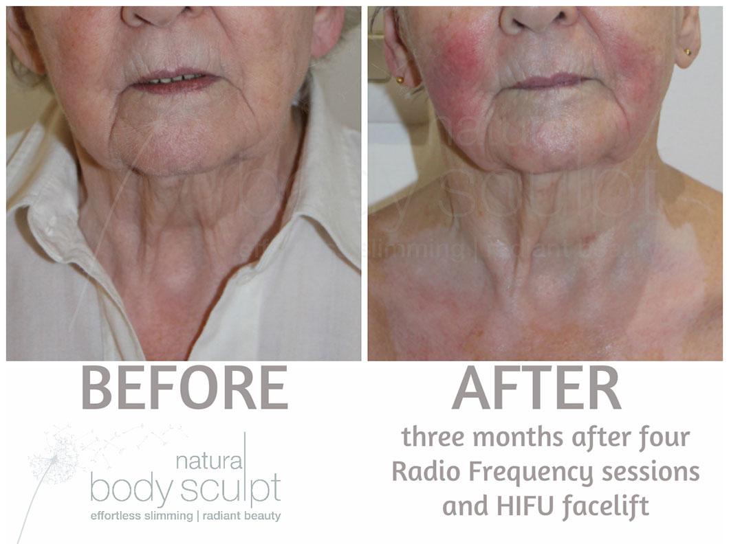 HIFU Facelift - High Intensity Focused Ultrasound | Natural