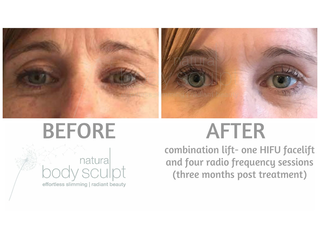 HIFU Facelift - High Intensity Focused Ultrasound | Natural